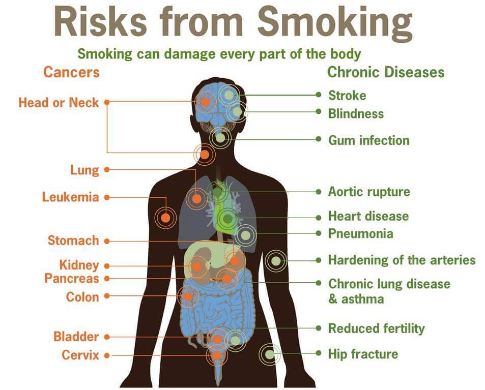 study-indicates-weed-vaporizer-usage-poses-less-risk-for-toxin-exposure-vaporplants-smoking-damage-health-body